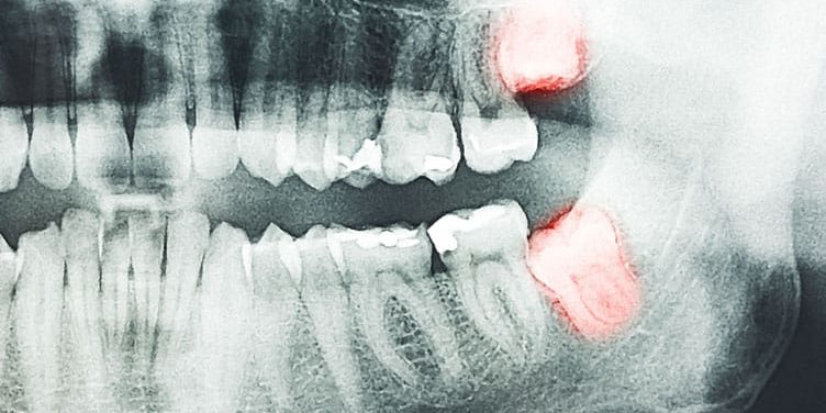 Dental Emergency X-Ray 1